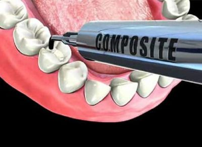 Restorations- Composite (white) fillings