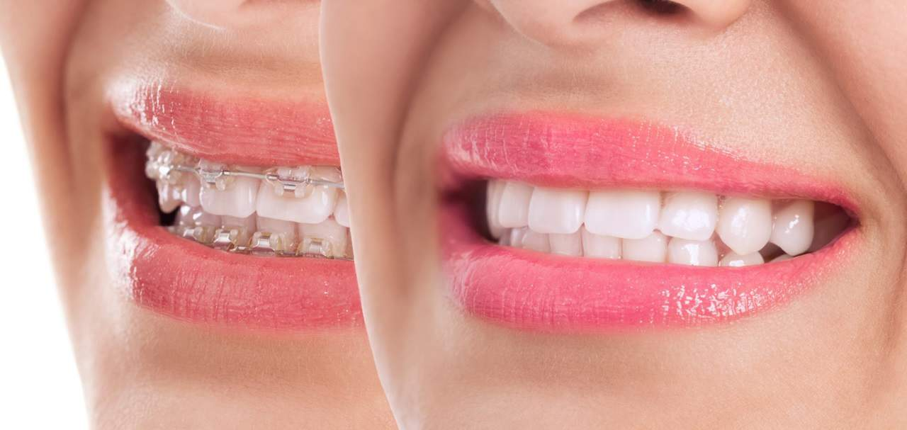 How To Get White Teeth With Braces