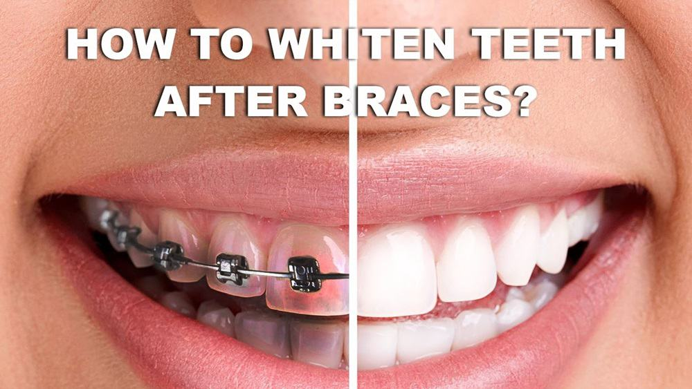 How To Get White Teeth With Braces: 5 Ways to Keep Your Teeth Whiter