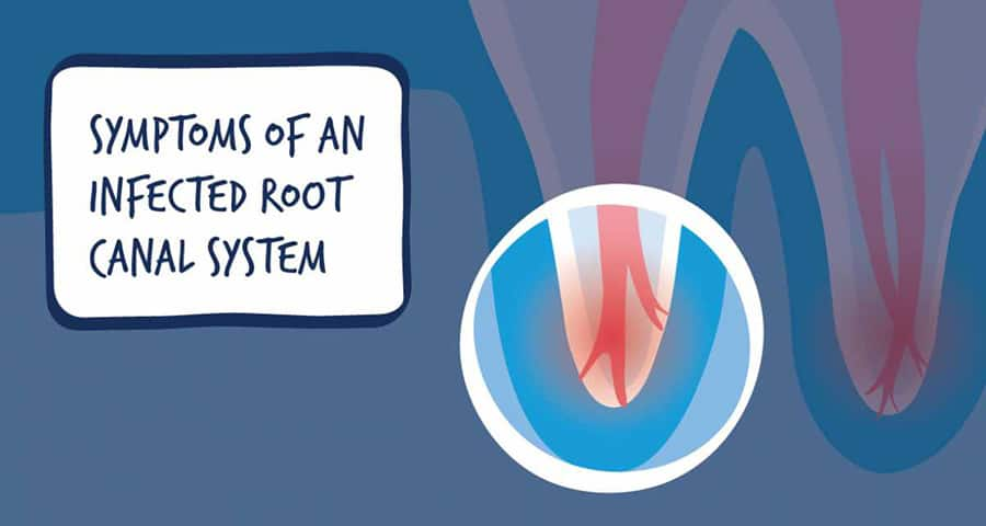 Symptoms to Get Root Canal Treatment