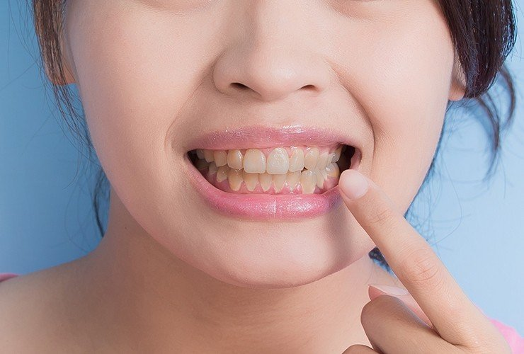 Best Ways To Remove Tobacco Stains From Teeth2