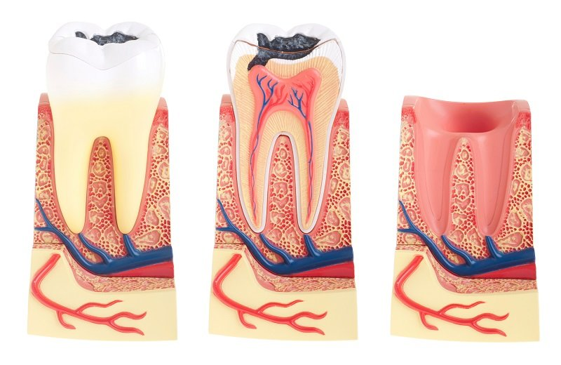 Image Dental Caries Treatment